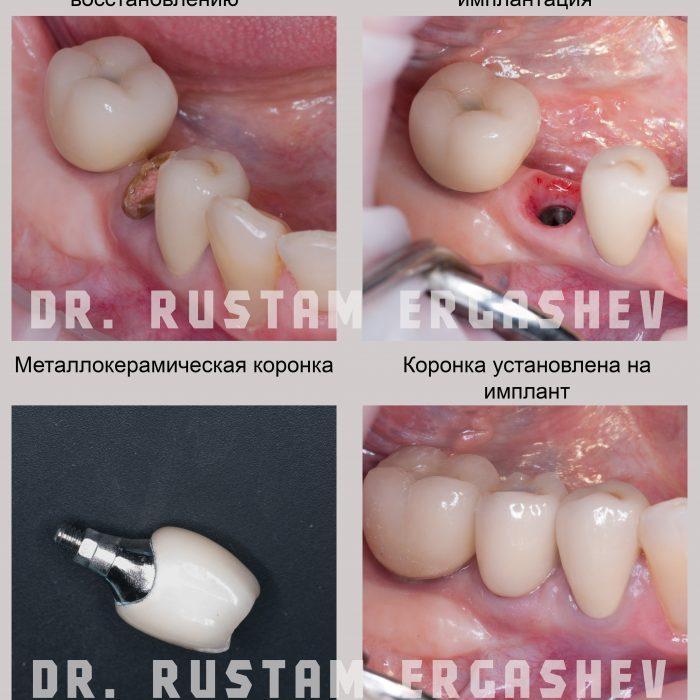 Одномоментная имплантация Криста Дент ул. Гурьянова д. 67, стр. 1. (м. Печатники)