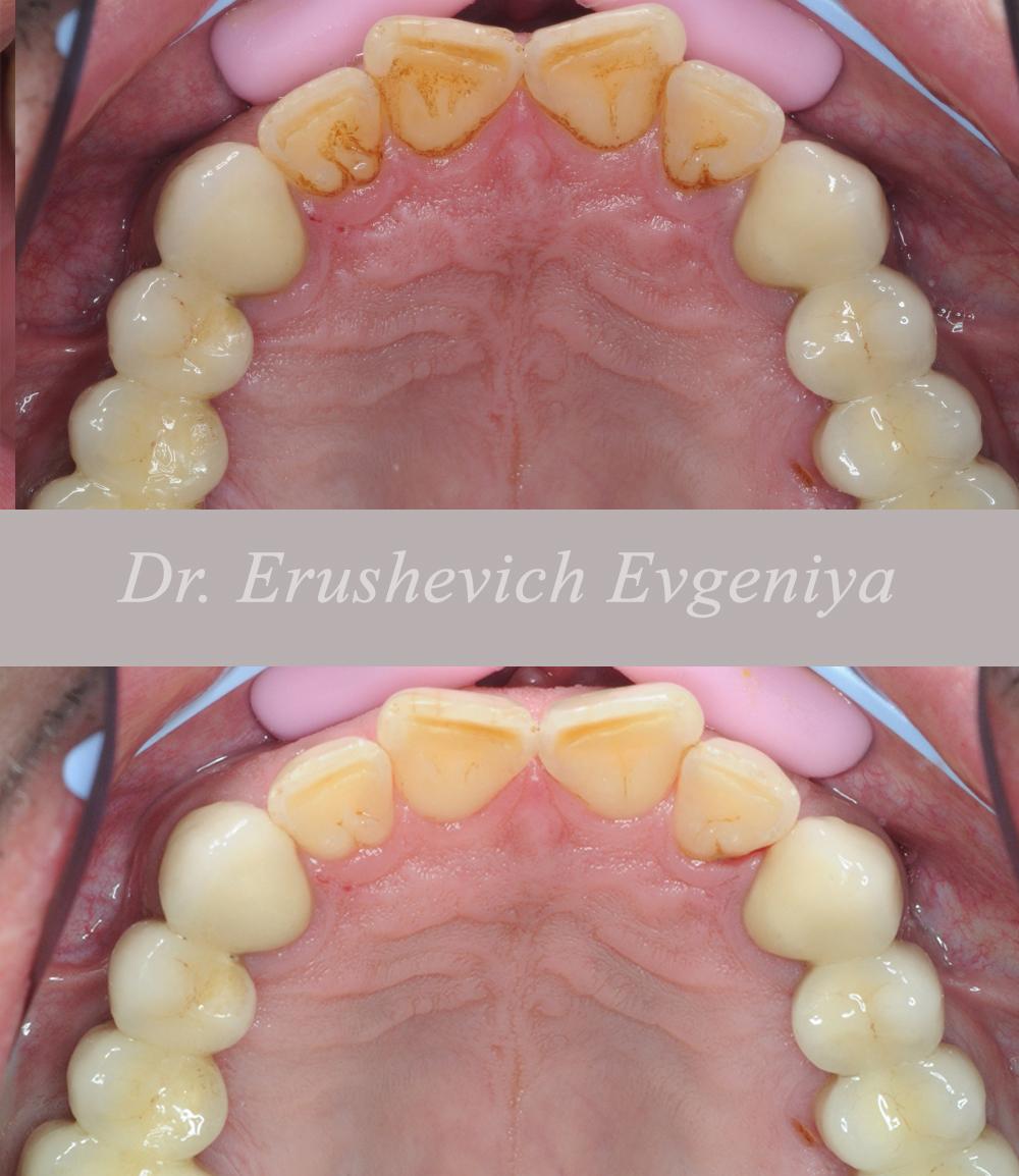 Ультразвуковая чистка зубных отложений