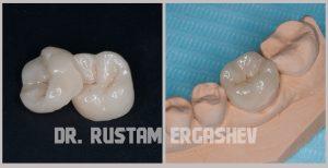 Установка керамической вкладки в стоматологии ул. Гурьянова д. 67, стр. 1. (м. Печатники)