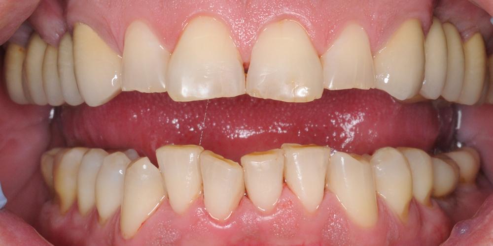 Комплексная гигиена полости рта. Комплексная чистка зубов.