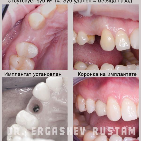 Классическая имплантация Криста Дент ул. Гурьянова д. 67, стр. 1. (м. Печатники)