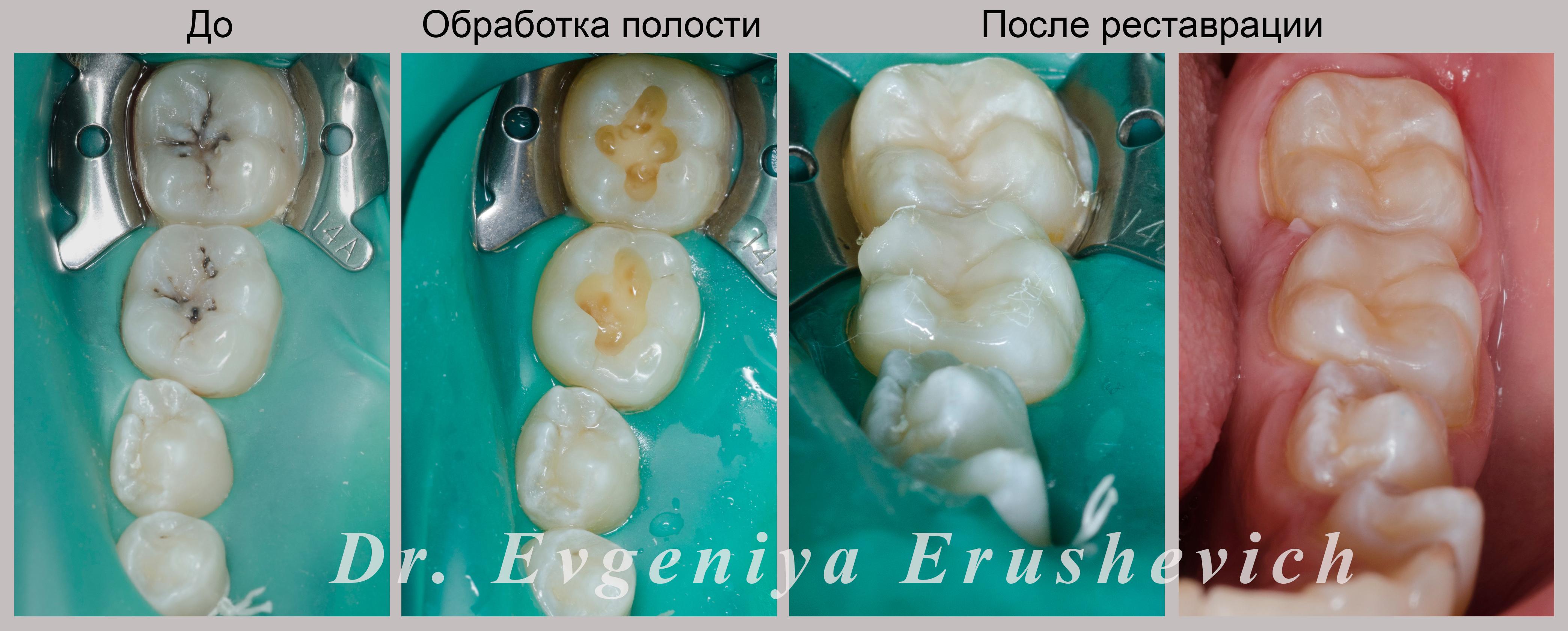 Лечение Кариеса в стоматологии ул. Гурьянова д. 67, стр. 1. (м. Печатники)