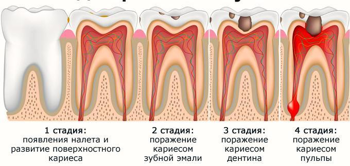 """Лечение пульпита в стоматологии """"Криста Дент"""""""