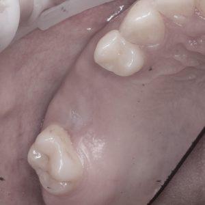 Открытый синуслифтинг хирургические этапы.