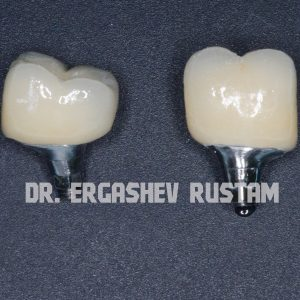 Одномоментная имплантация жевательного зуба Криста Дент ул. Гурьянова д. 67, стр. 1. (м. Печатники)