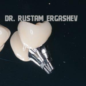 Классическая имплантация – или отсроченная имплантация. Криста Дент ул. Гурьянова д. 67, стр. 1. (м. Печатники)