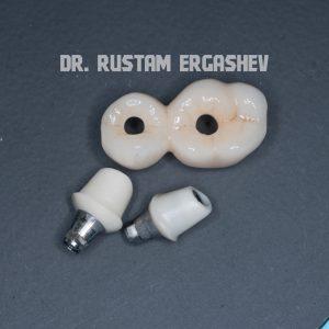 Хирургические Ортопедические этапы. Открытый синуслифтинг