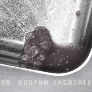 одномоментная имплантация премоляр Криста Дент ул. Гурьянова д. 67, стр. 1. (м. Печатники)